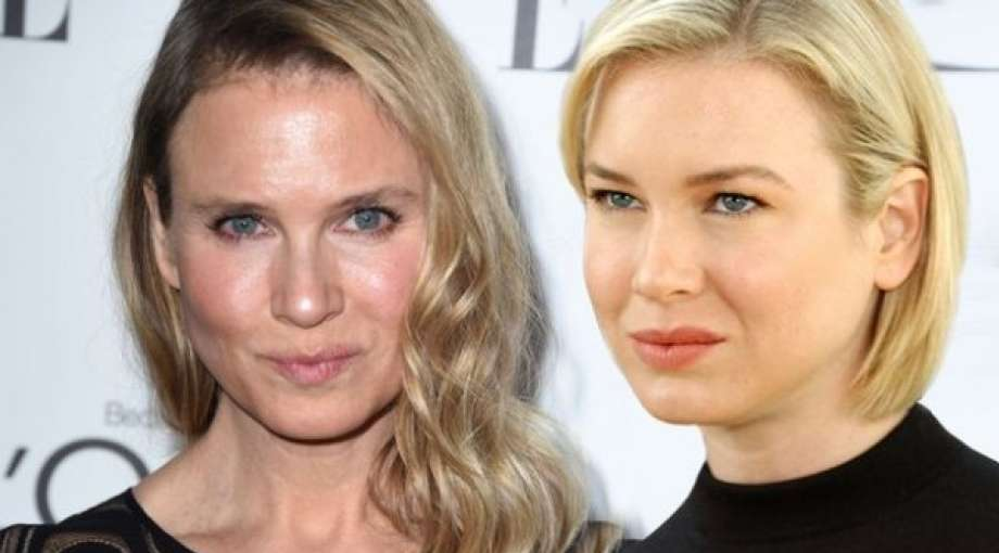 Che fine ha fatto Bridget Jones? Irriconoscibile Zellweger