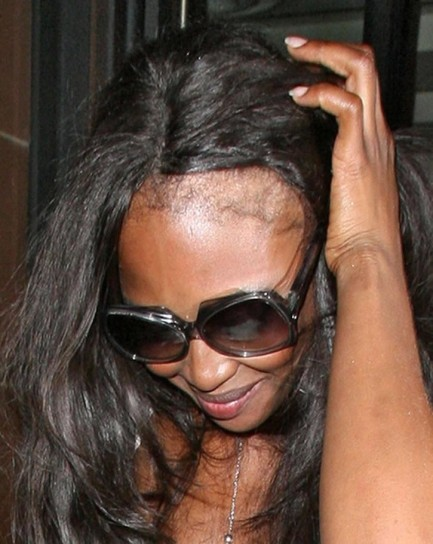 Naomi Campbell senza capelli